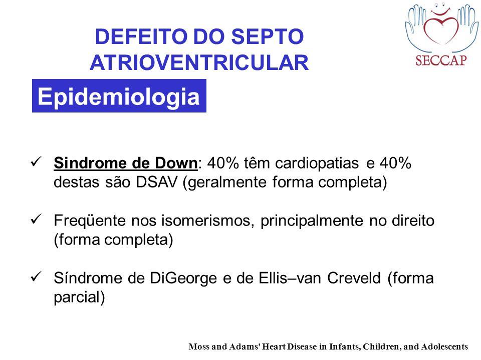 DEFEITO DO SEPTO ATRIOVENTRICULAR Sindrome de Down: 40% têm cardiopatias e 40% destas são DSAV (geralmente forma completa) Freqüente nos isomerismos,