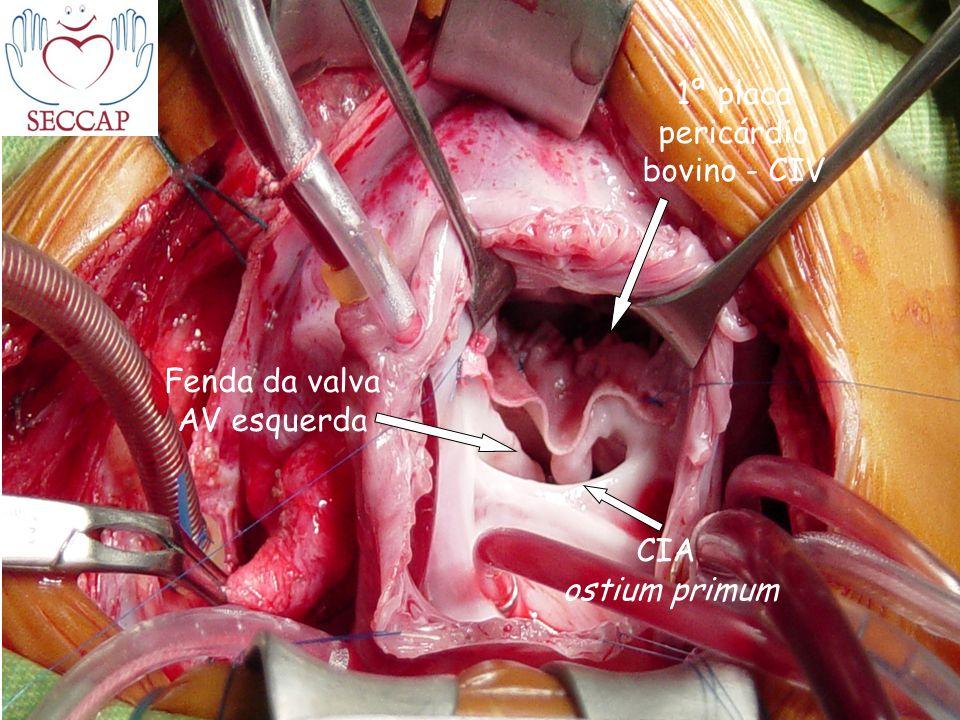 Fenda da valva AV esquerda 1ª placa pericárdio bovino - CIV CIA ostium primum