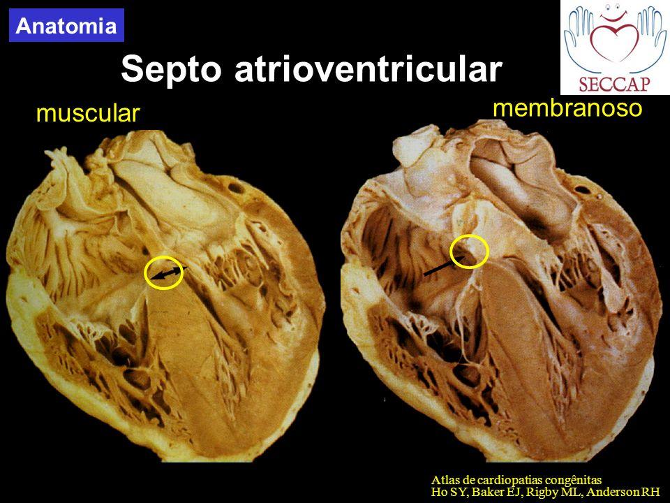 Septo atrioventricular Atlas de cardiopatias congênitas Ho SY, Baker EJ, Rigby ML, Anderson RH muscular membranoso Anatomia