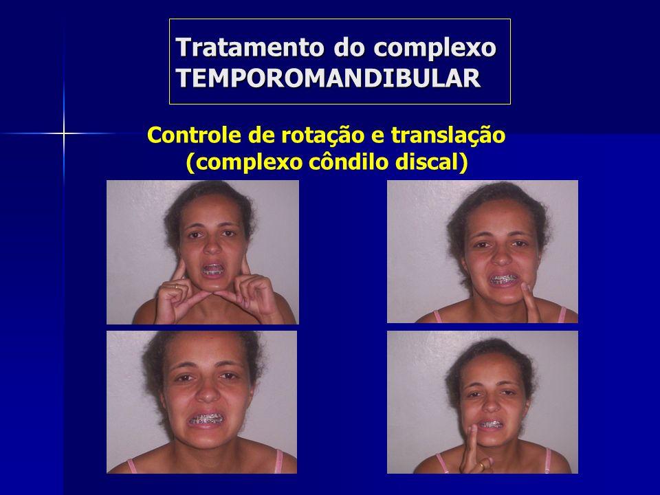 Tratamento do complexo TEMPOROMANDIBULAR