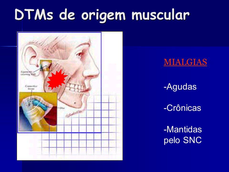 DTMs de origem muscular MIALGIAS -Agudas -Crônicas -Mantidas pelo SNC