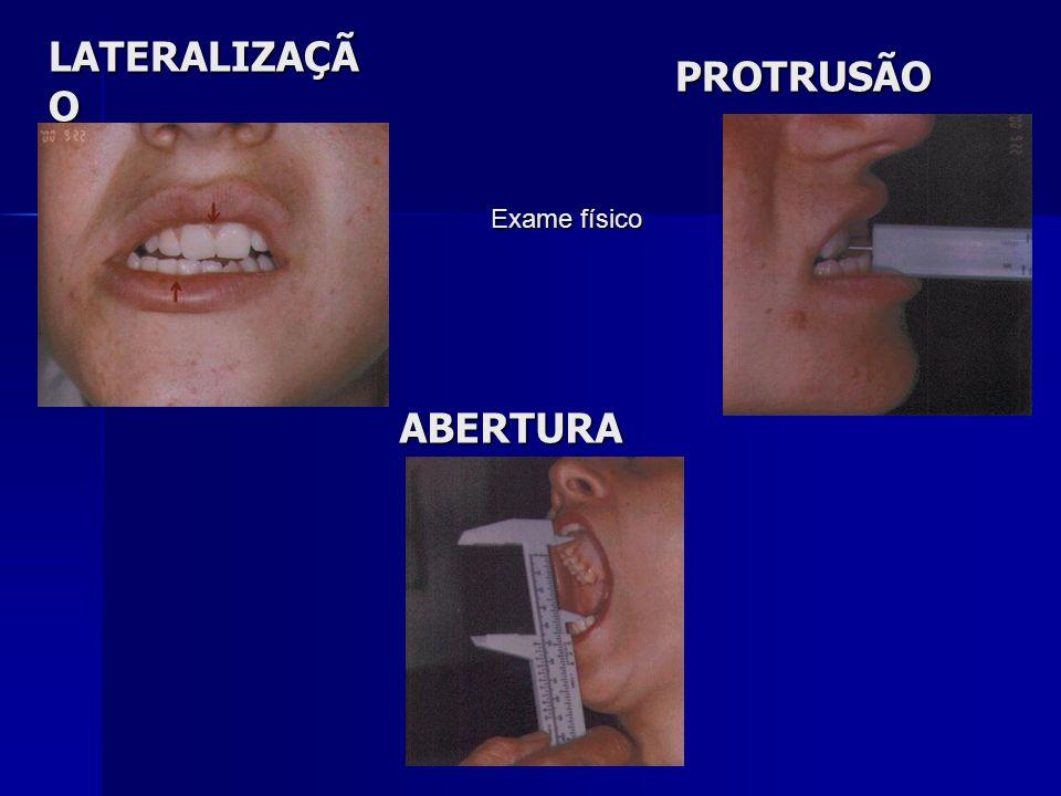 LATERALIZAÇÃ O PROTRUSÃO ABERTURA Exame físico