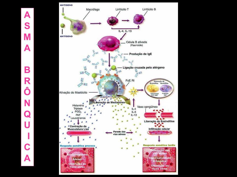 Degranulação sistêmica de mastócitos - Urticária - Angioedema (Edema profundo) - PA Anafilaxia induzida por alergia alimentar
