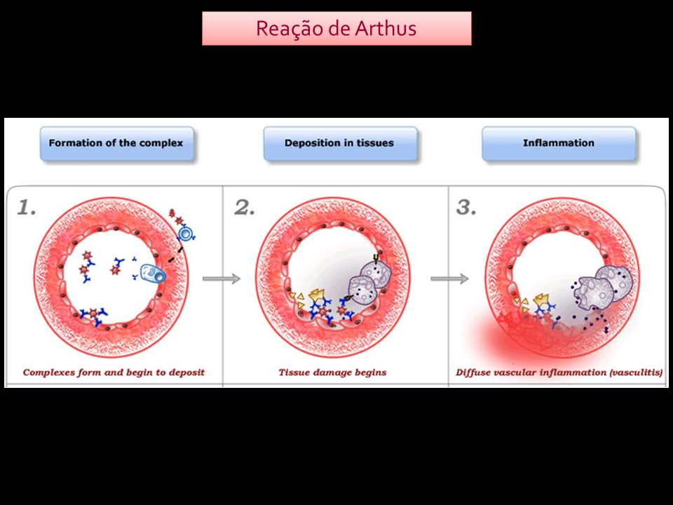 Lesão vascular Atração de neutrófilos ao local, iniciando um processo inflamatório Atração de neutrófilos ao local, iniciando um processo inflamatório Ativação de complemento Fixação dos complexos imunes que não foram fagocitados à parede dos vasos Fixação dos complexos imunes que não foram fagocitados à parede dos vasos Formação de complexos Ag-Ac VASCULITEVASCULITE