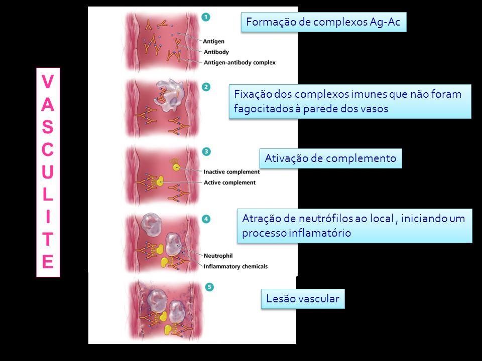 I (Imediata)IgE – basófilos e/ou mastócitos II (Citotóxico)IgG – Ags na membrana de células III (Imunecomplexos)IgG -Ags solúveis IV (Tardia)Células T