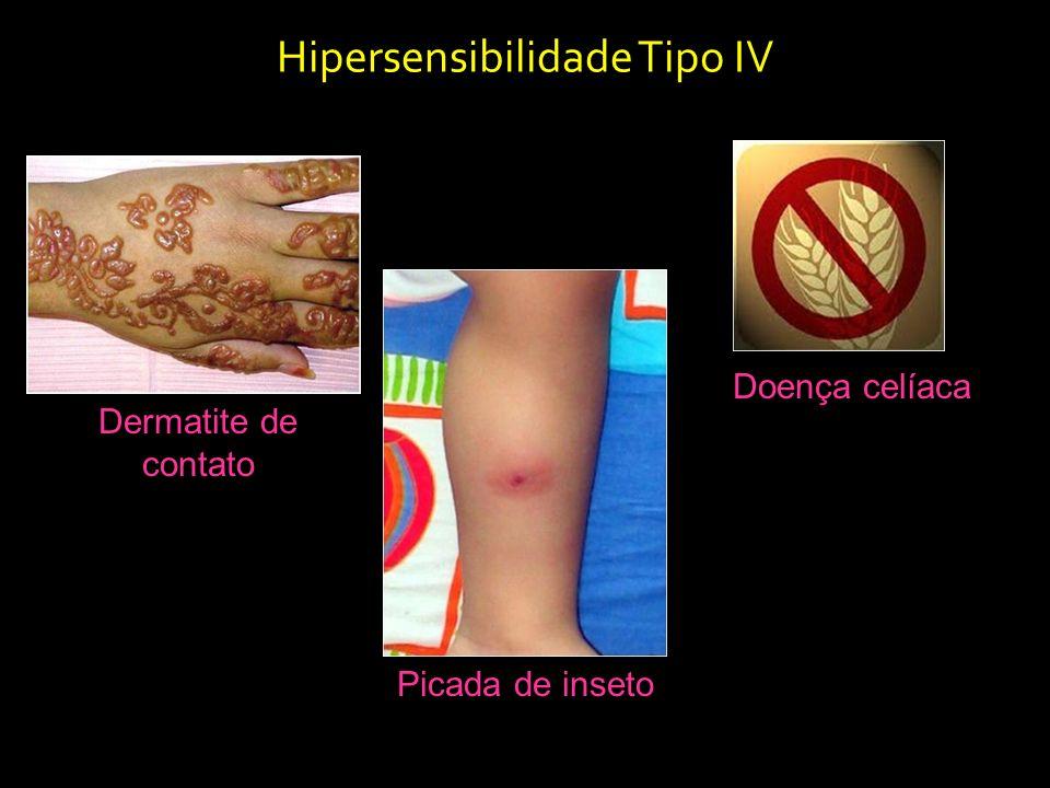 Dermatite de contato Hipersensibilidade Tipo IV Picada de inseto Doença celíaca
