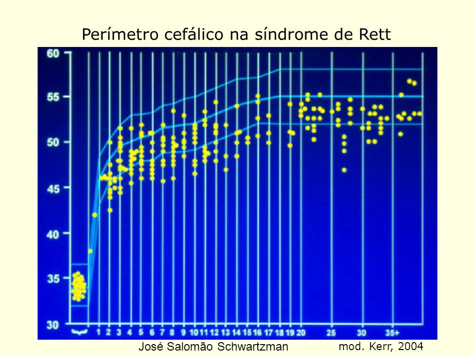 Perímetro cefálico na síndrome de Rett mod. Kerr, 2004 José Salomão Schwartzman