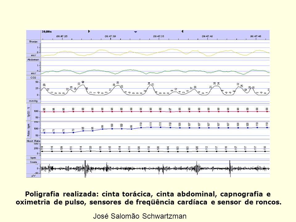 Poligrafia realizada: cinta torácica, cinta abdominal, capnografia e oximetria de pulso, sensores de freqüência cardíaca e sensor de roncos. José Salo