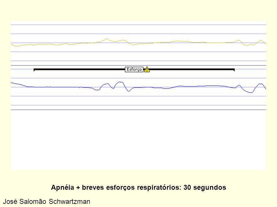 Apnéia + breves esforços respiratórios: 30 segundos José Salomão Schwartzman
