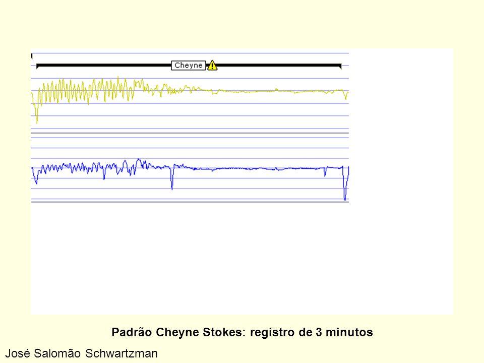Padrão Cheyne Stokes: registro de 3 minutos José Salomão Schwartzman