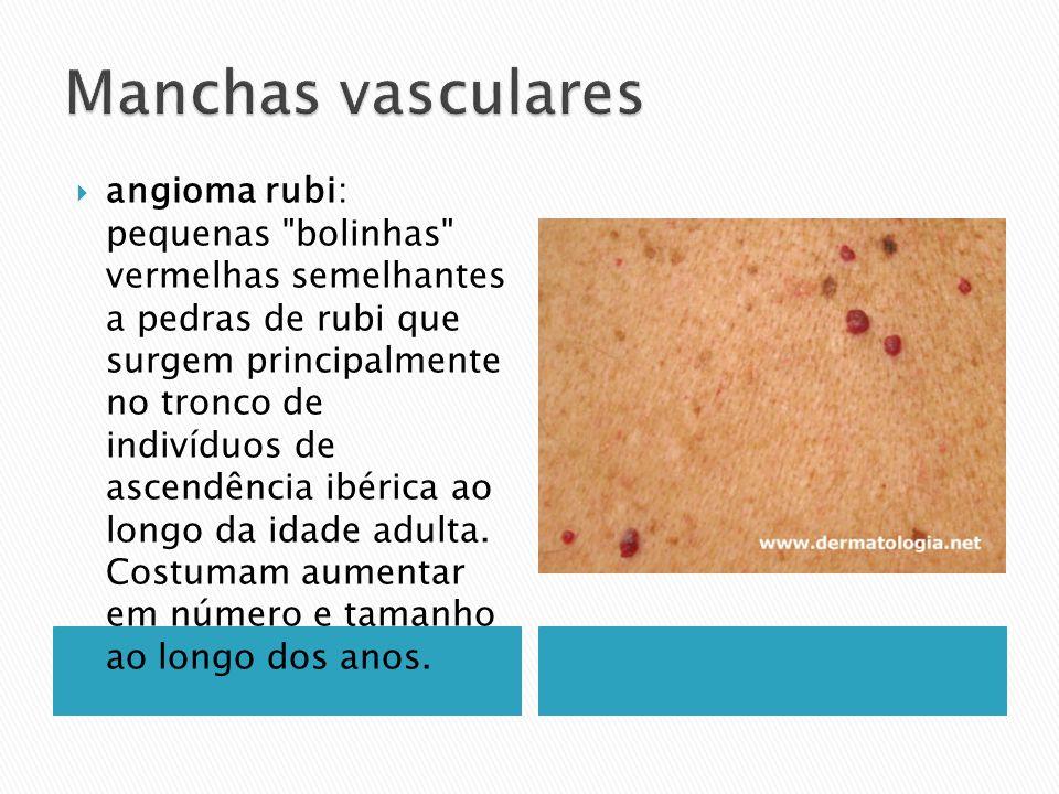 angioma rubi: pequenas