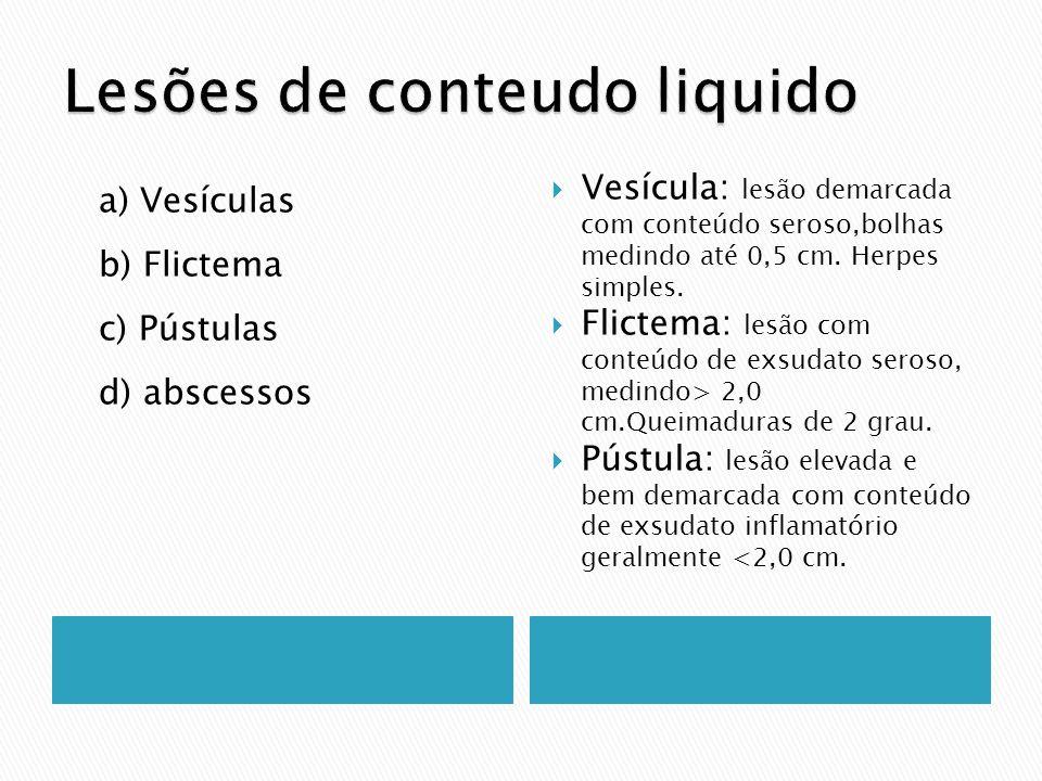 a) Vesículas b) Flictema c) Pústulas d) abscessos Vesícula: lesão demarcada com conteúdo seroso,bolhas medindo até 0,5 cm. Herpes simples. Flictema: l