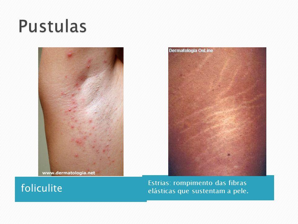 foliculite Estrias: rompimento das fibras elásticas que sustentam a pele.