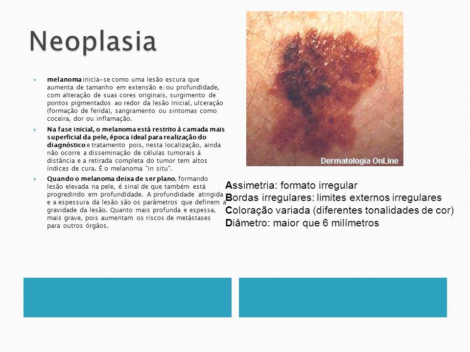 melanoma inicia-se como uma lesão escura que aumenta de tamanho em extensão e/ou profundidade, com alteração de suas cores originais, surgimento de po