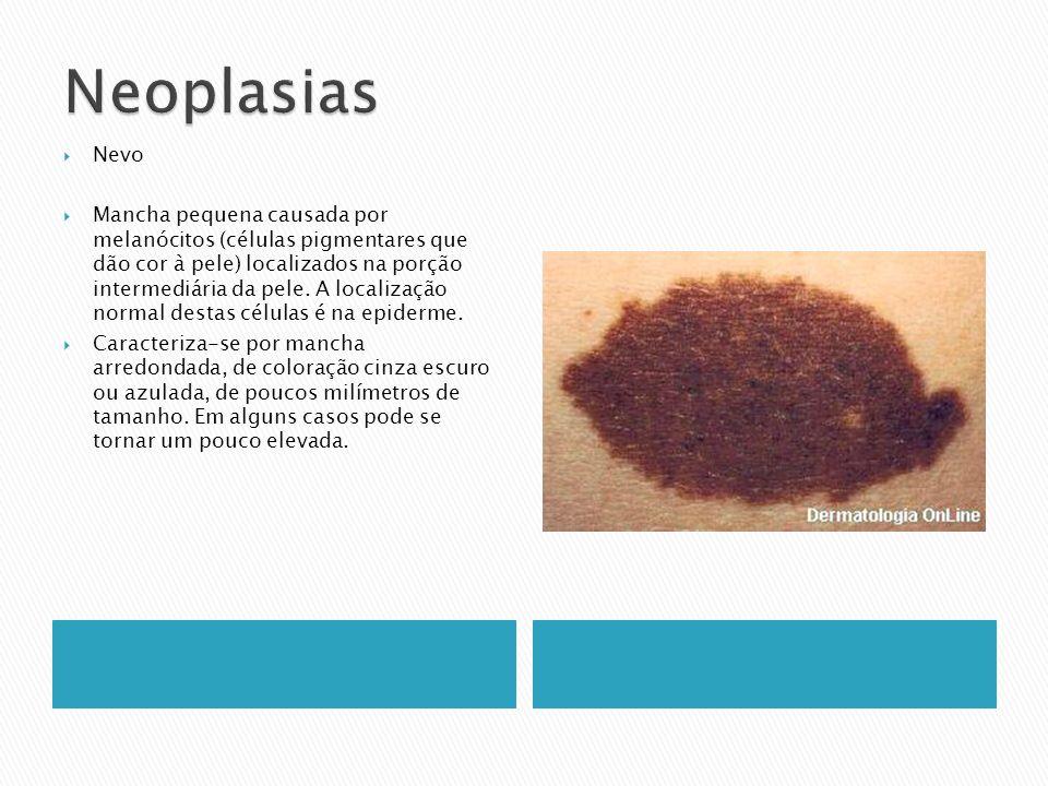 Nevo Mancha pequena causada por melanócitos (células pigmentares que dão cor à pele) localizados na porção intermediária da pele. A localização normal