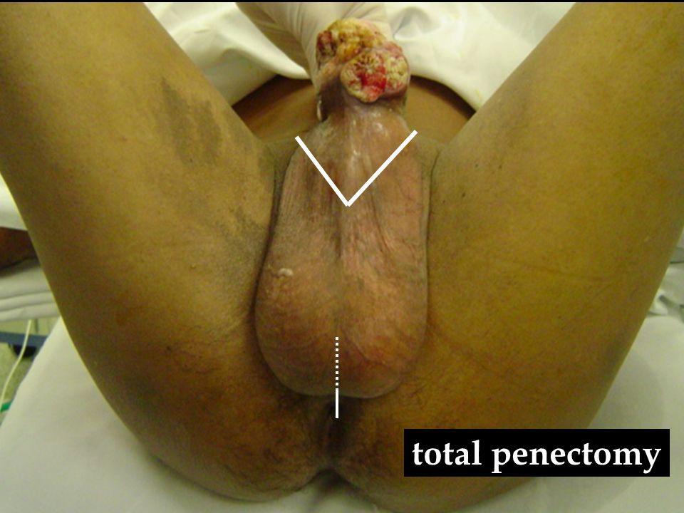 T3 lesion