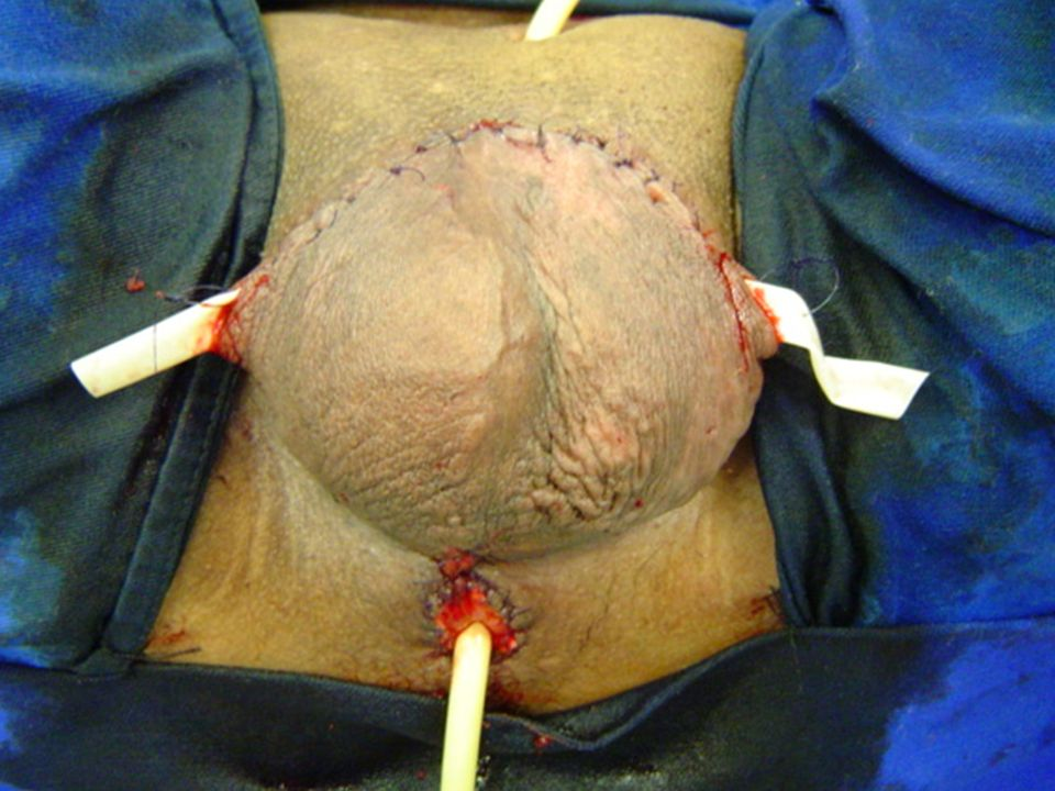 total penectomy