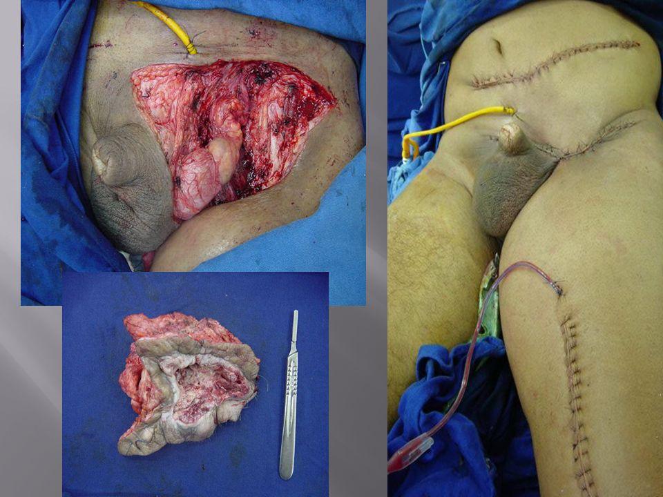 femoral artery tumour