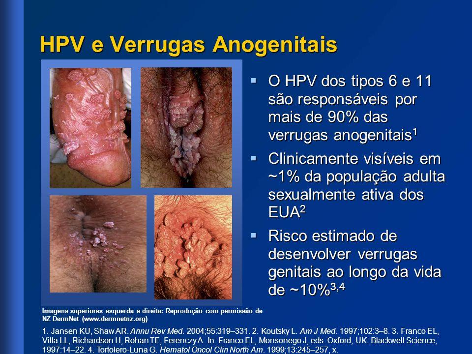 HPV e Verrugas Anogenitais O HPV dos tipos 6 e 11 são responsáveis por mais de 90% das verrugas anogenitais 1 O HPV dos tipos 6 e 11 são responsáveis