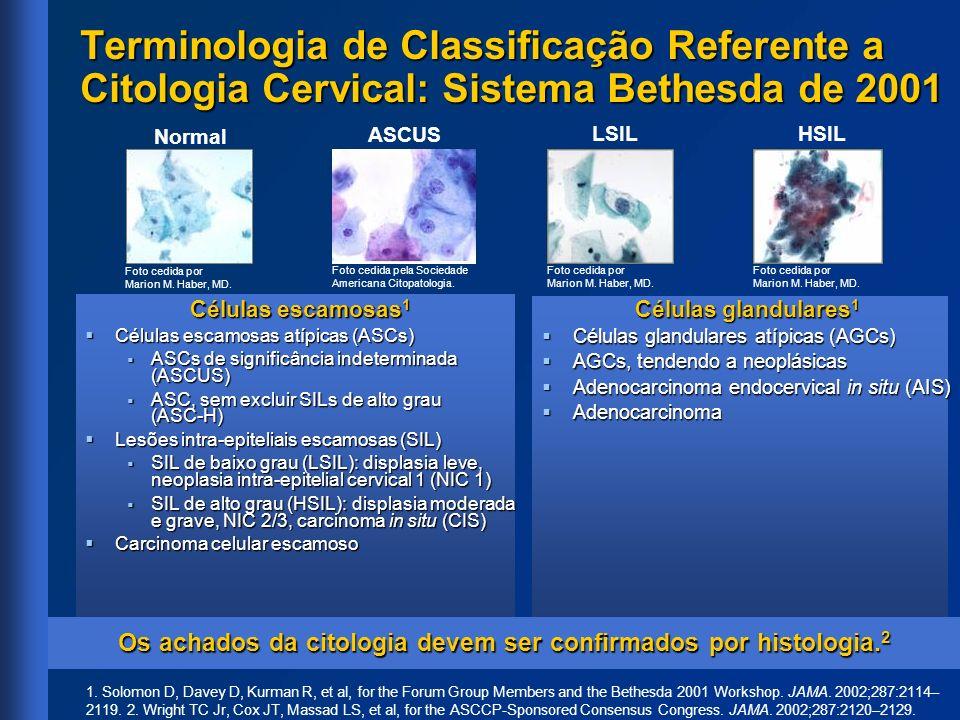 Terminologia de Classificação Referente a Citologia Cervical: Sistema Bethesda de 2001 Células escamosas 1 Células escamosas atípicas (ASCs) Células e