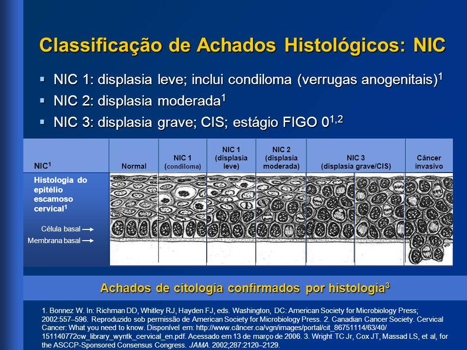 Classificação de Achados Histológicos: NIC NIC 1: displasia leve; inclui condiloma (verrugas anogenitais) 1 NIC 1: displasia leve; inclui condiloma (v