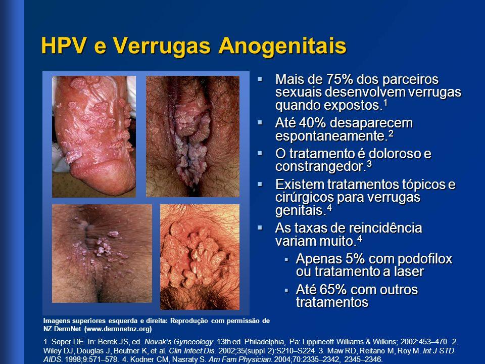 HPV e Verrugas Anogenitais Mais de 75% dos parceiros sexuais desenvolvem verrugas quando expostos. 1 Mais de 75% dos parceiros sexuais desenvolvem ver