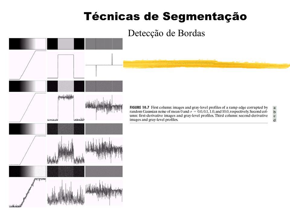 Técnicas de Segmentação Detecção de Bordas