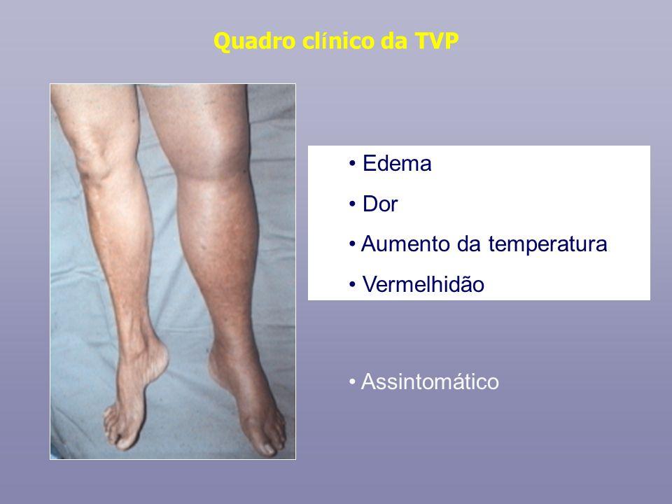 Quadro cl í nico da TVP Edema Dor Aumento da temperatura Vermelhidão Assintomático