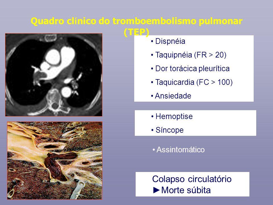 Dispnéia Taquipnéia (FR > 20) Dor torácica pleurítica Taquicardia (FC > 100) Ansiedade Colapso circulatório Morte súbita Quadro cl í nico do tromboemb