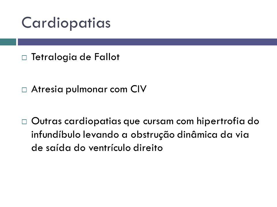 Cardiopatias Tetralogia de Fallot Atresia pulmonar com CIV Outras cardiopatias que cursam com hipertrofia do infundíbulo levando a obstrução dinâmica
