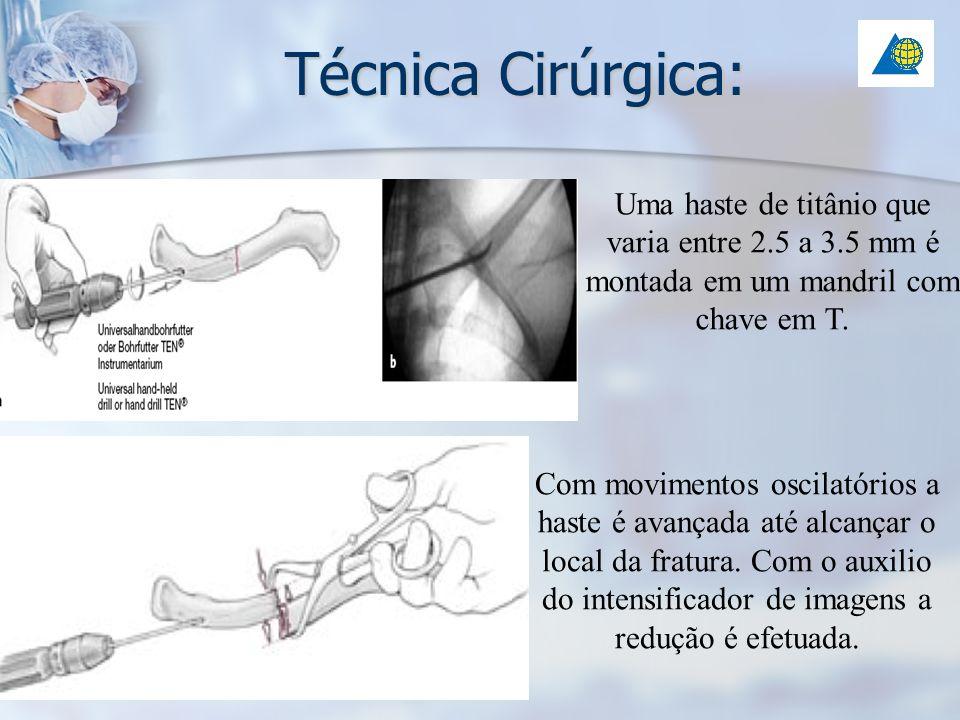 Técnica Cirúrgica: Uma haste de titânio que varia entre 2.5 a 3.5 mm é montada em um mandril com chave em T. Com movimentos oscilatórios a haste é ava