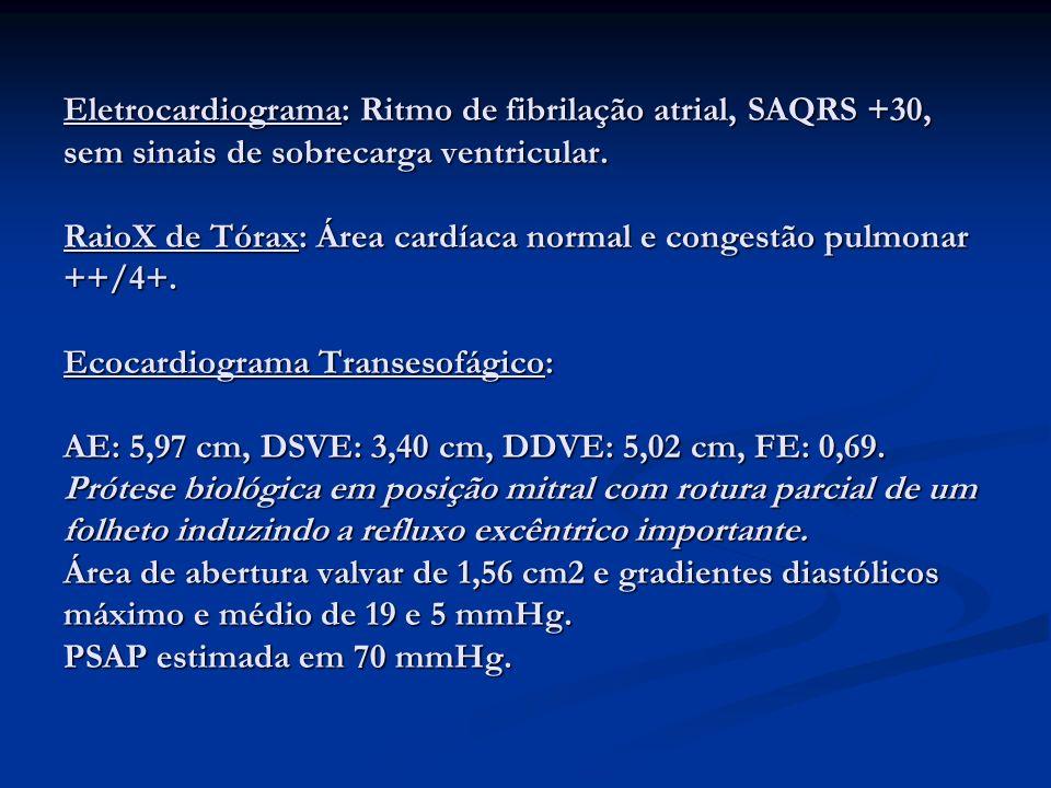 Eletrocardiograma: Ritmo de fibrilação atrial, SAQRS +30, sem sinais de sobrecarga ventricular. RaioX de Tórax: Área cardíaca normal e congestão pulmo