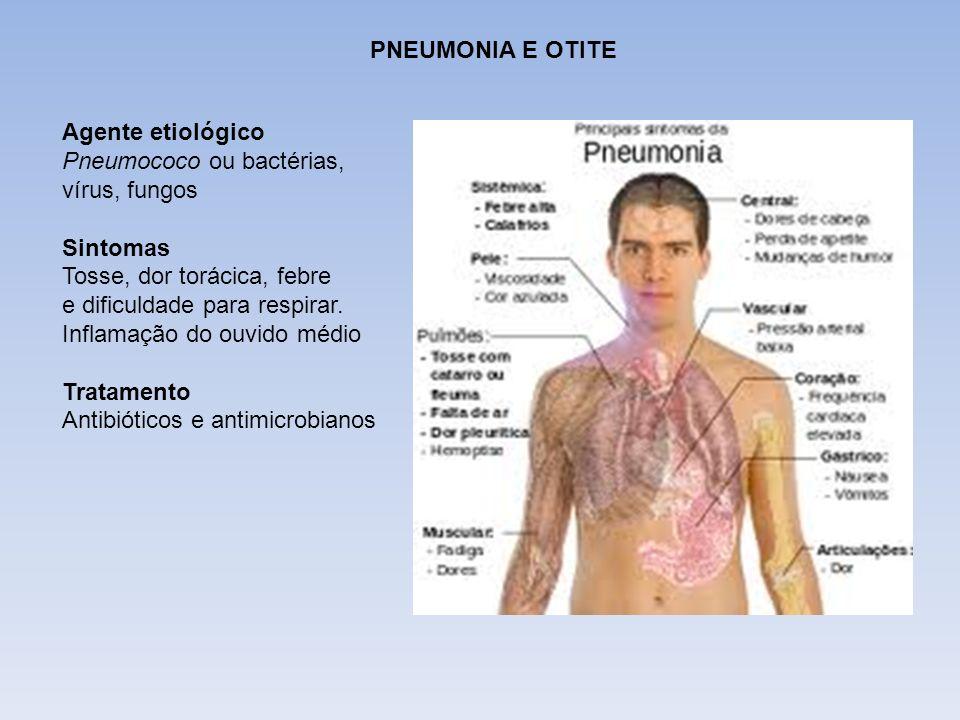 DIFTERIA PNEUMONIA E OTITE Agente etiológico Pneumococo ou bactérias, vírus, fungos Sintomas Tosse, dor torácica, febre e dificuldade para respirar. I
