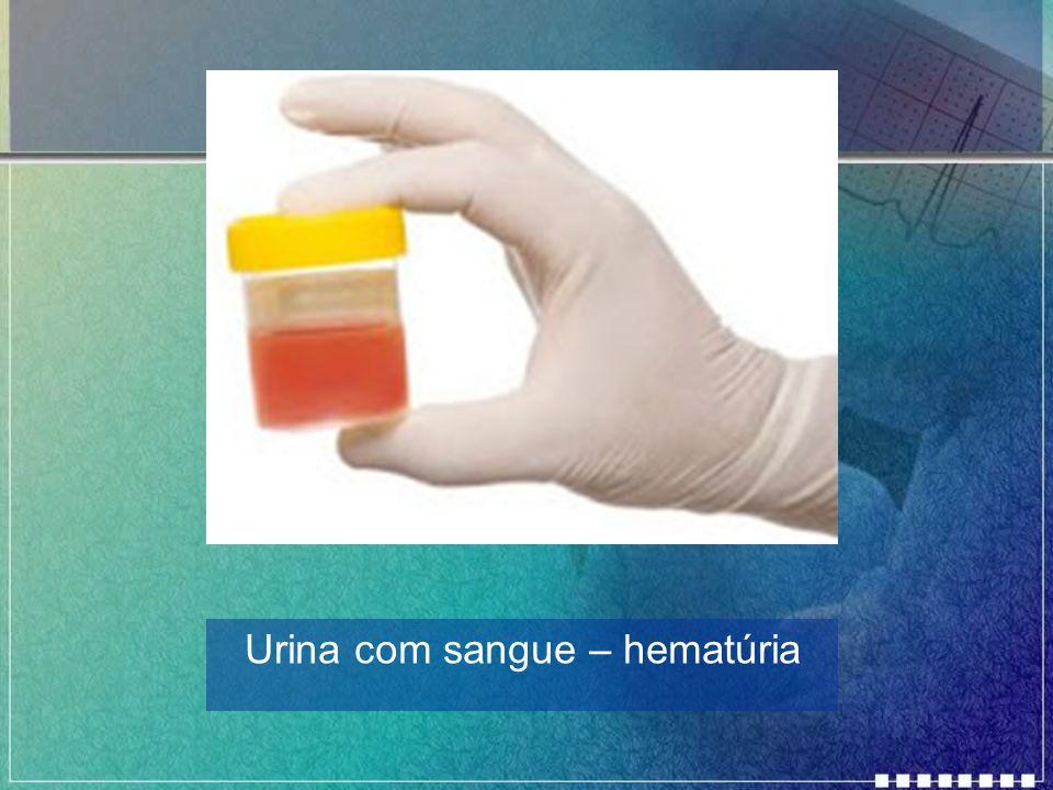 Urina com sangue – hematúria