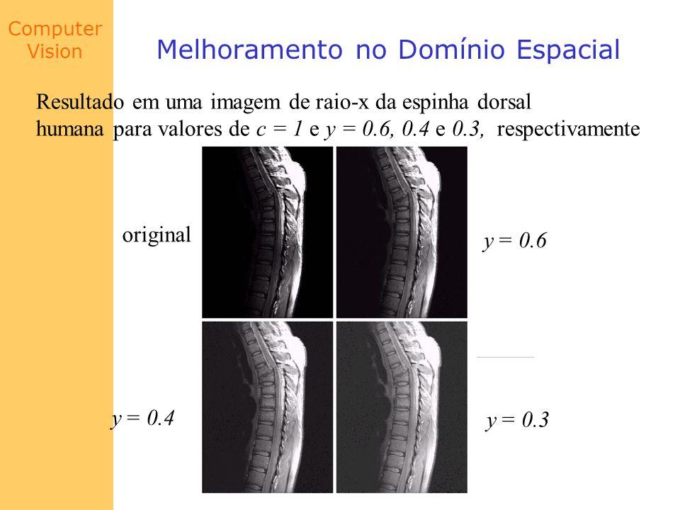 Computer Vision Melhoramento no Domínio Espacial Resultado em uma imagem de raio-x da espinha dorsal humana para valores de c = 1 e y = 0.6, 0.4 e 0.3