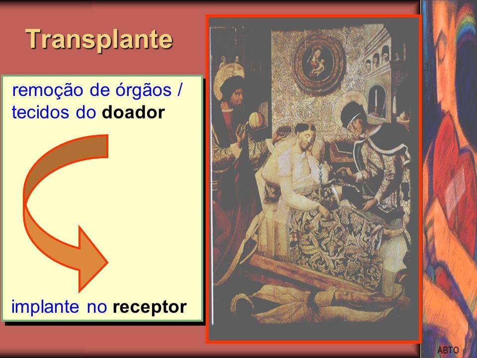 ABTO remoção de órgãos / tecidos do doador implante no receptor remoção de órgãos / tecidos do doador implante no receptor Transplante