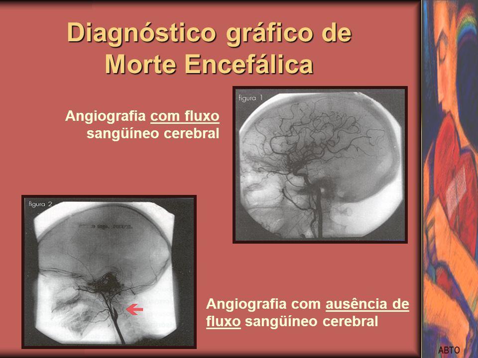 ABTO Angiografia com fluxo sangüíneo cerebral Angiografia com ausência de fluxo sangüíneo cerebral Diagnóstico gráfico de Morte Encefálica