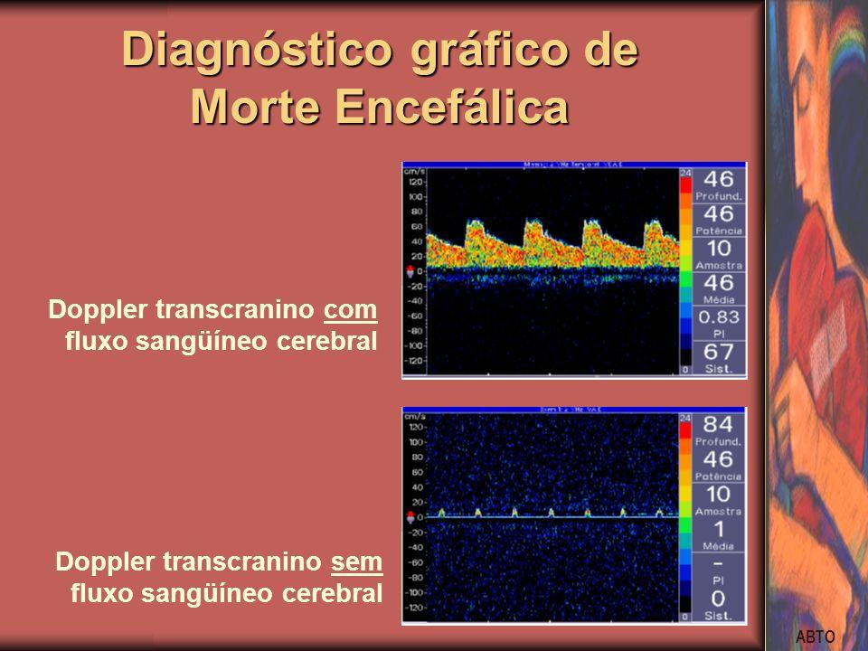 ABTO Diagnóstico gráfico de Morte Encefálica Doppler transcranino com fluxo sangüíneo cerebral Doppler transcranino sem fluxo sangüíneo cerebral