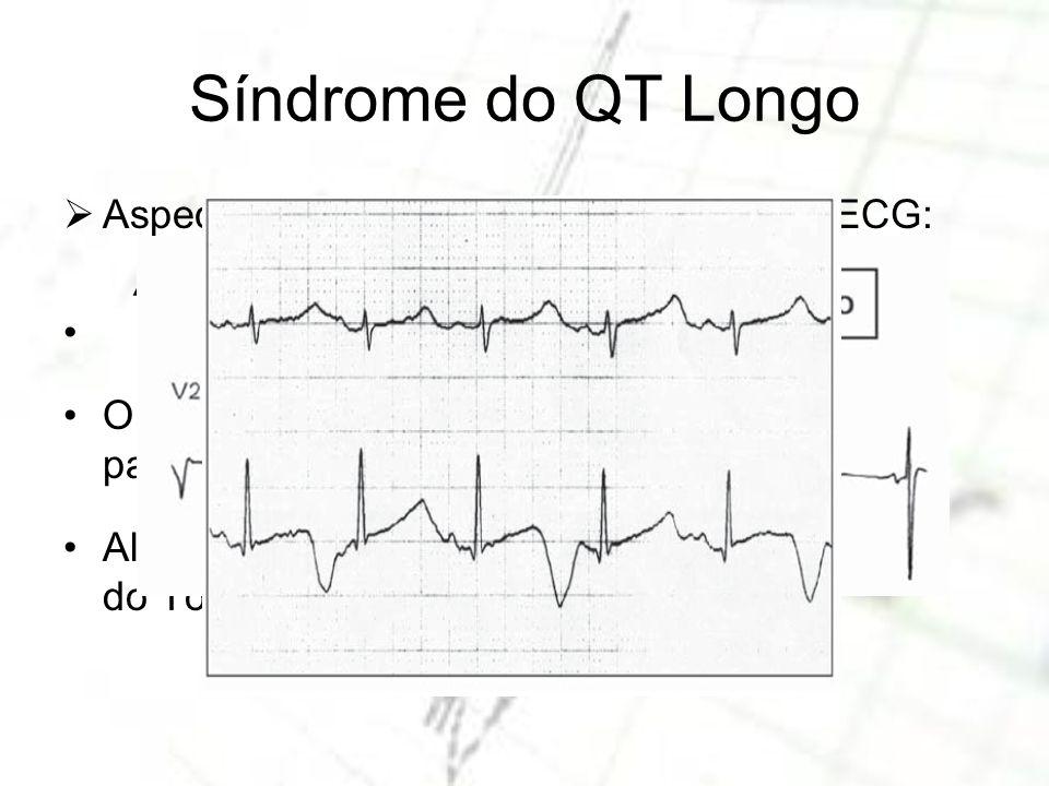Aspectos da Síndrome do QT Longo no ECG: do intervalo QT Onda T bífida (denteada) maior evolução para EAD. Alternância de onda T (precede aparecimento
