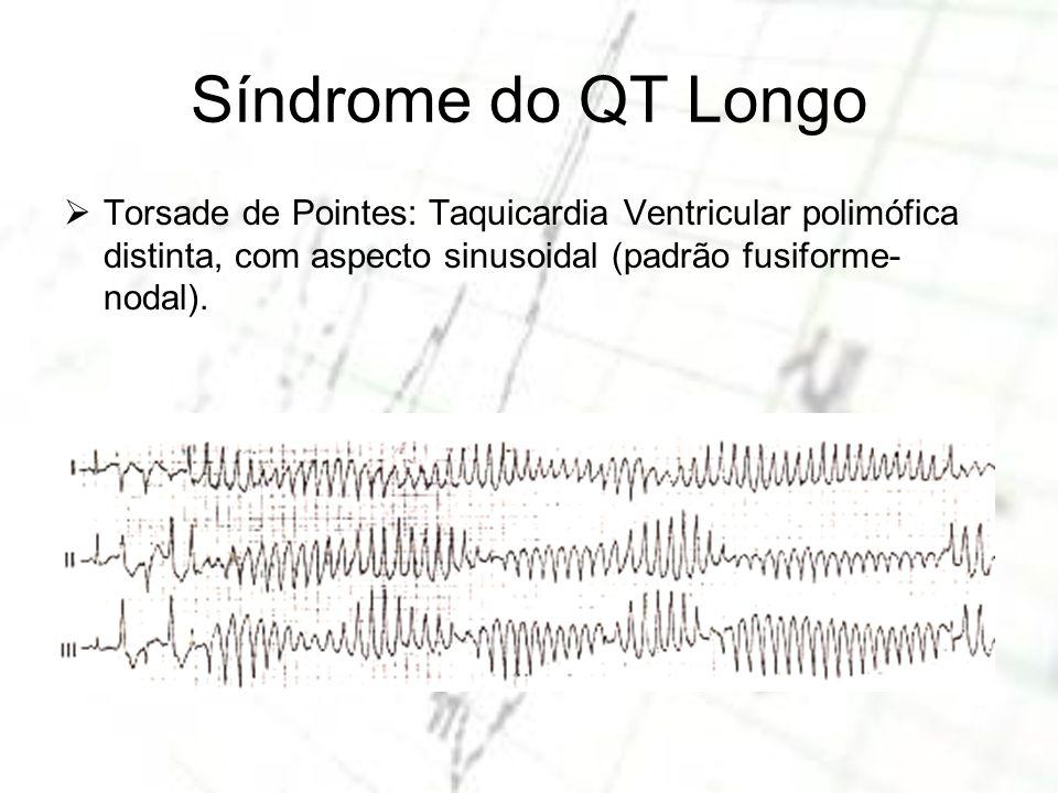 Torsade de Pointes: Taquicardia Ventricular polimófica distinta, com aspecto sinusoidal (padrão fusiforme- nodal).