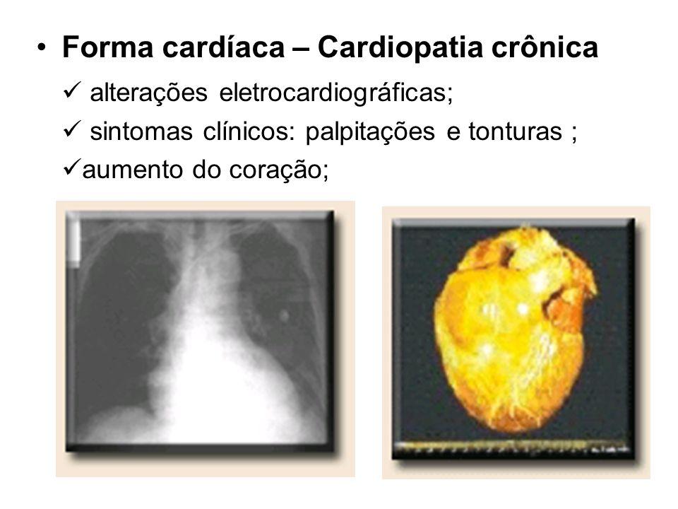 Forma cardíaca – Cardiopatia crônica alterações eletrocardiográficas; sintomas clínicos: palpitações e tonturas ; aumento do coração;