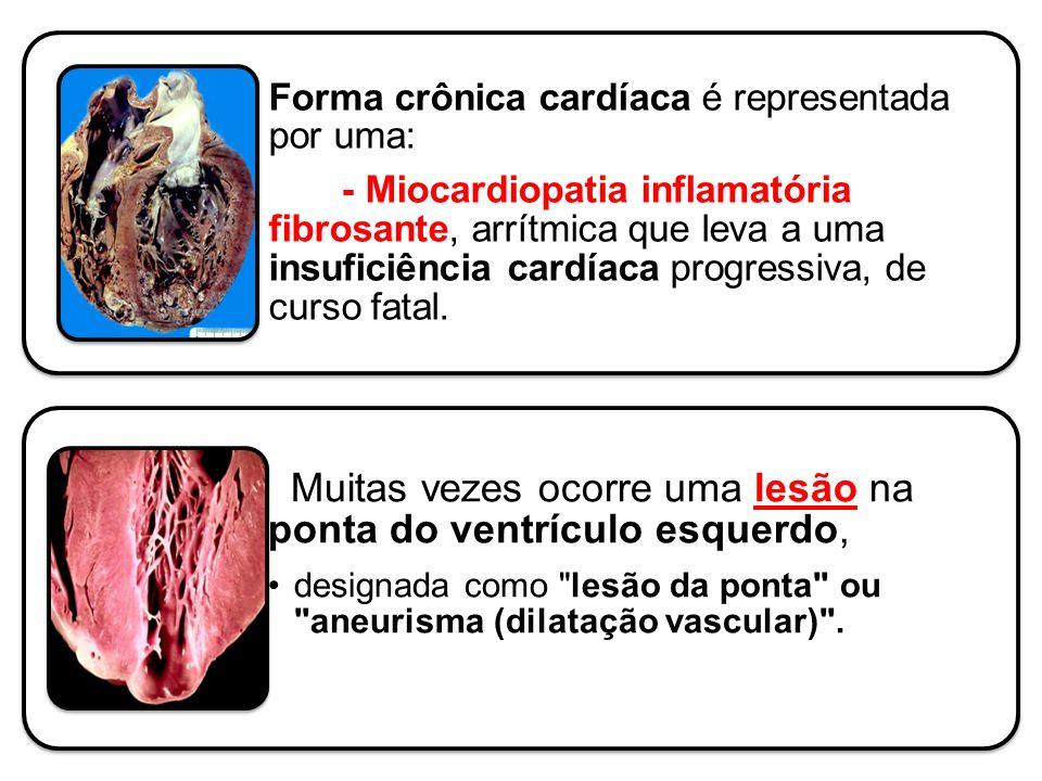 Forma crônica cardíaca é representada por uma: - Miocardiopatia inflamatória fibrosante, arrítmica que leva a uma insuficiência cardíaca progressiva,