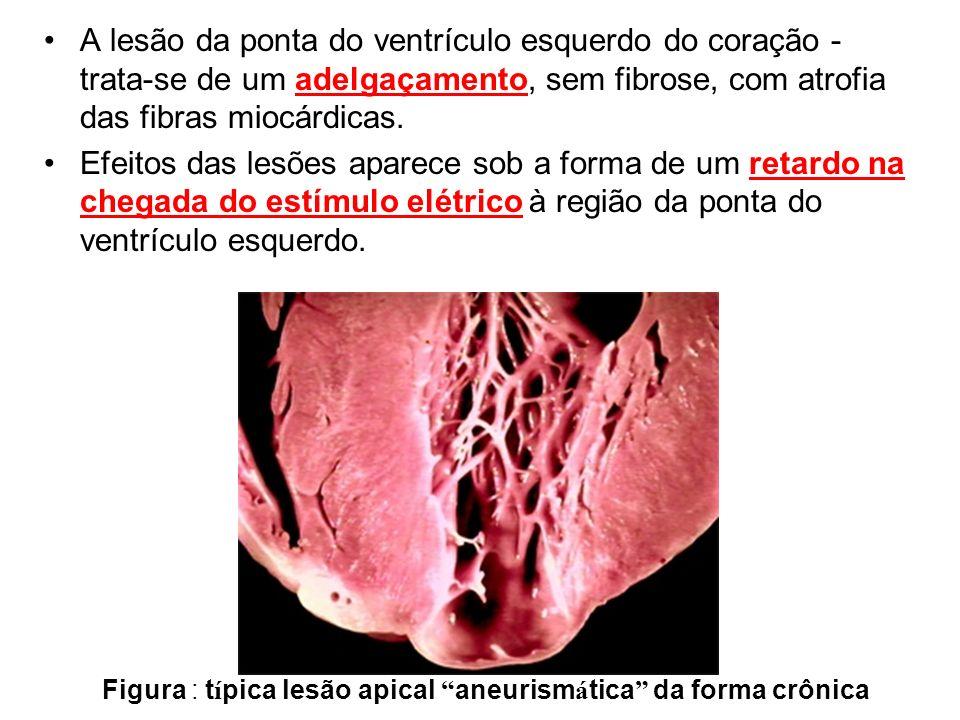 A lesão da ponta do ventrículo esquerdo do coração - trata-se de um adelgaçamento, sem fibrose, com atrofia das fibras miocárdicas. Efeitos das lesões