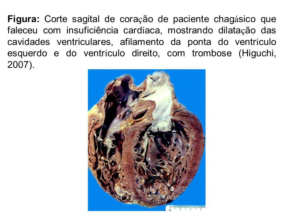 Figura: Corte sagital de cora ç ão de paciente chag á sico que faleceu com insuficiência card í aca, mostrando dilata ç ão das cavidades ventriculares