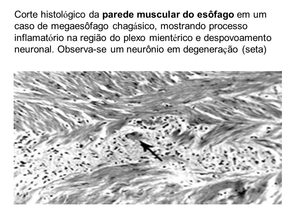 Corte histol ó gico da parede muscular do esôfago em um caso de megaesôfago chag á sico, mostrando processo inflamat ó rio na região do plexo mient é