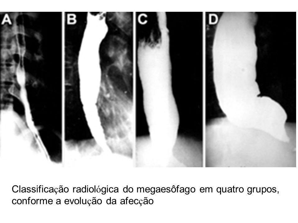 Classifica ç ão radiol ó gica do megaesôfago em quatro grupos, conforme a evolu ç ão da afec ç ão