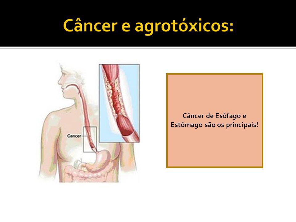 Câncer de Esôfago e Estômago são os principais!