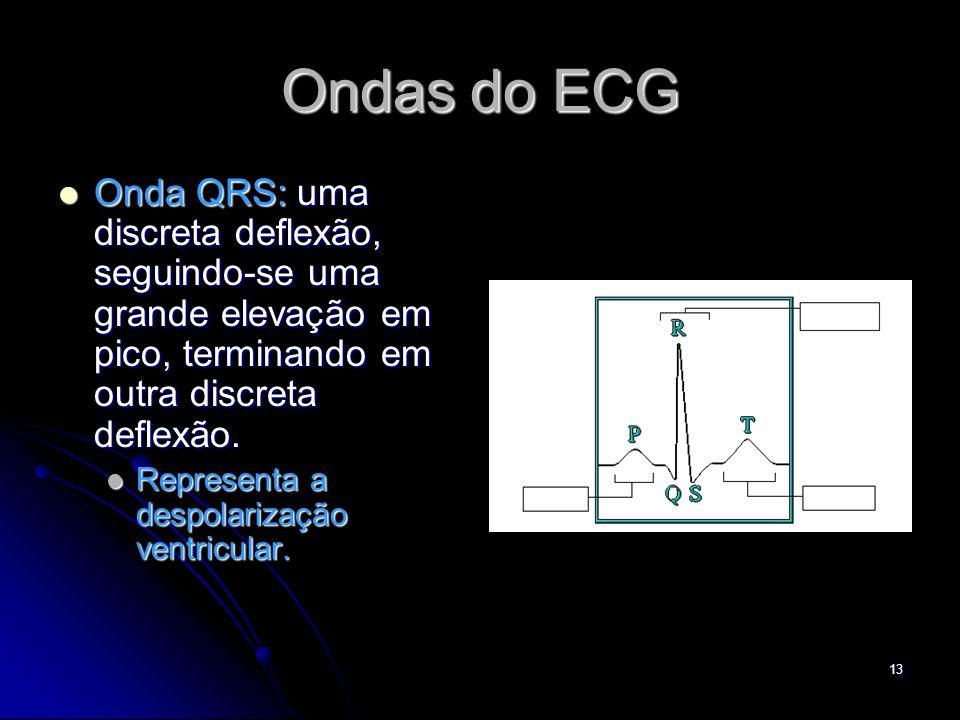 13 Ondas do ECG Onda QRS: uma discreta deflexão, seguindo-se uma grande elevação em pico, terminando em outra discreta deflexão. Onda QRS: uma discret