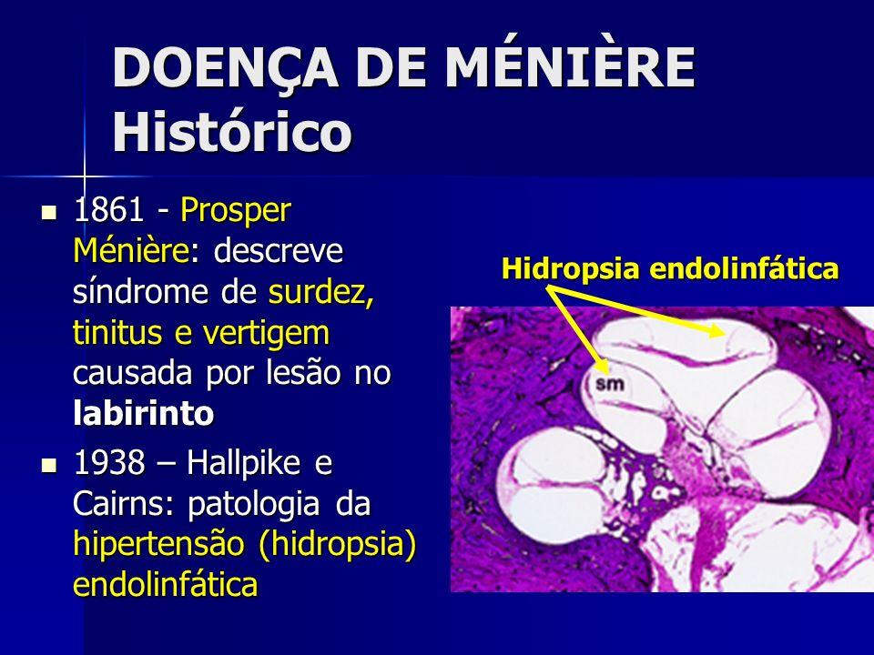 DOENÇA DE MÉNIÈRE Histórico 1861 - Prosper Ménière: descreve síndrome de surdez, tinitus e vertigem causada por lesão no labirinto 1861 - Prosper Méni