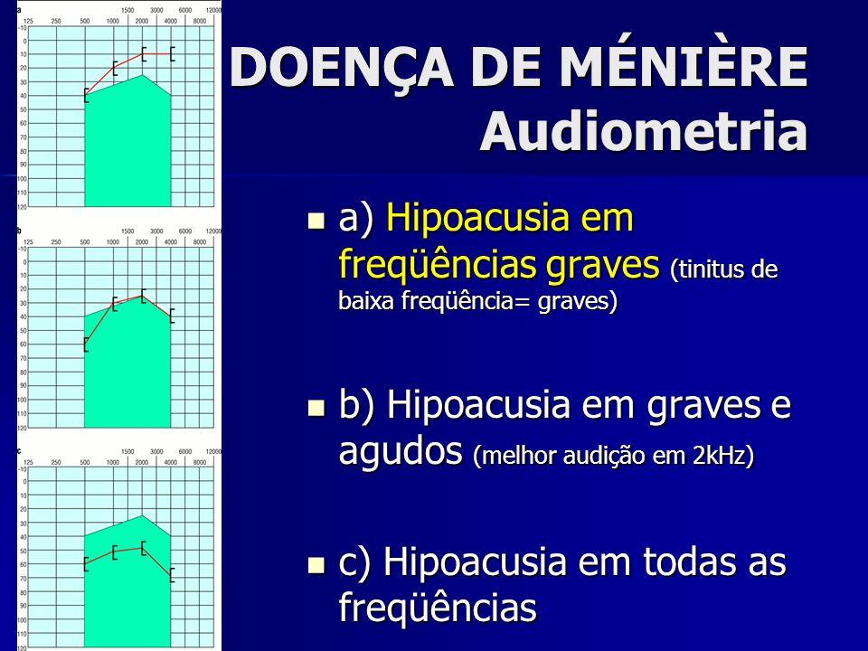 DOENÇA DE MÉNIÈRE Audiometria a) Hipoacusia em freqüências graves (tinitus de baixa freqüência= graves) a) Hipoacusia em freqüências graves (tinitus d
